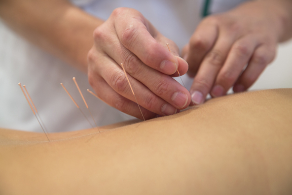 Treatment by Medical acupuncture at Loxwood Clinic